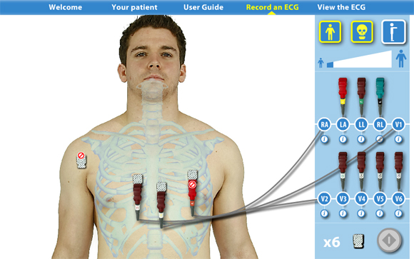 Virtual ECG: Skeleton front view