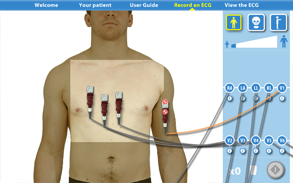 Virtual ECG: Front view restricted areas