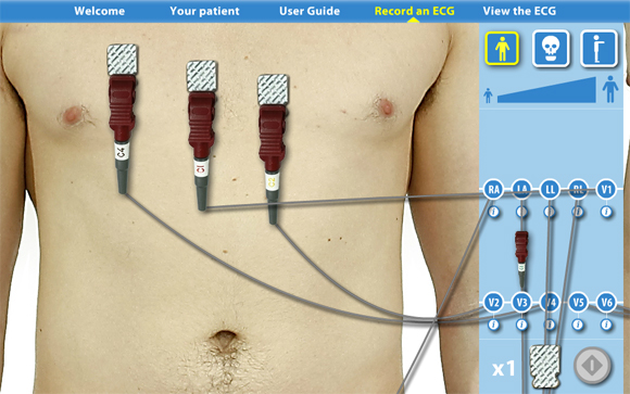 Virtual ECG: Front view zoomed in