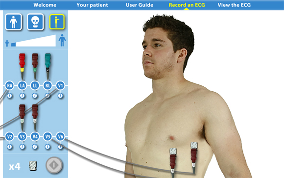 Virtual ECG: Side view