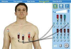 Vitrual ECG